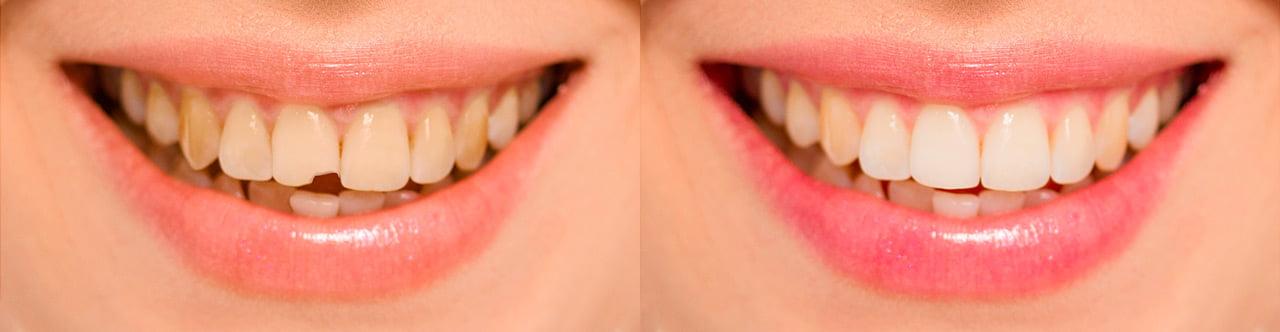 resinas dentales antes y despues de adelgazar