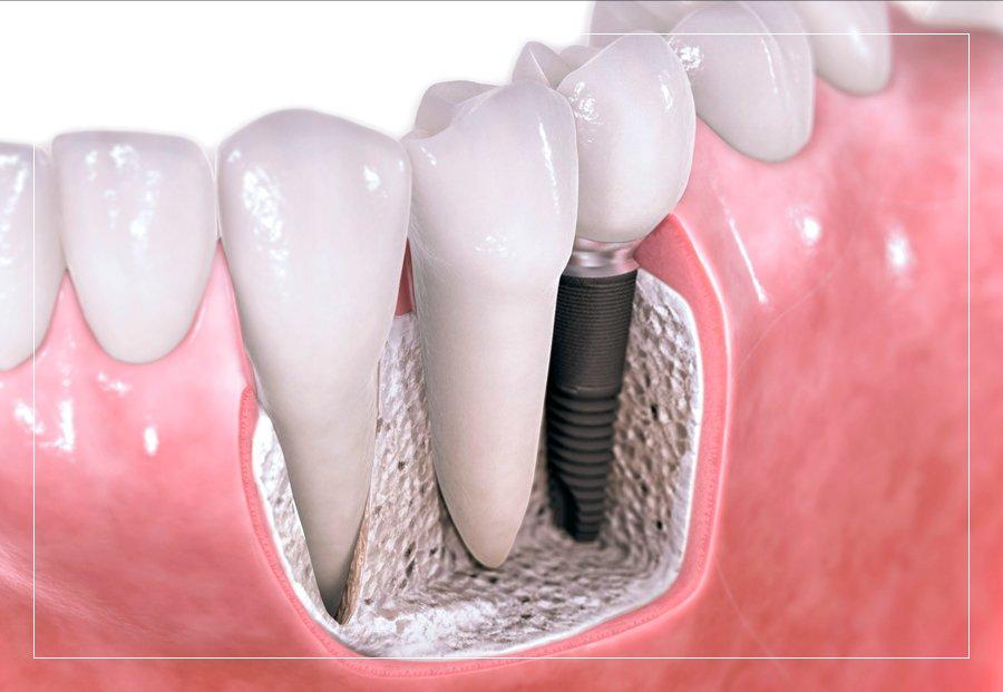 Representación gráfica de un implante dental