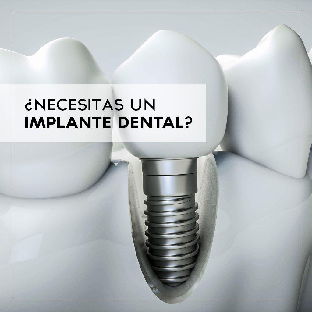 El Precio de los implantes dentales en Ibiza